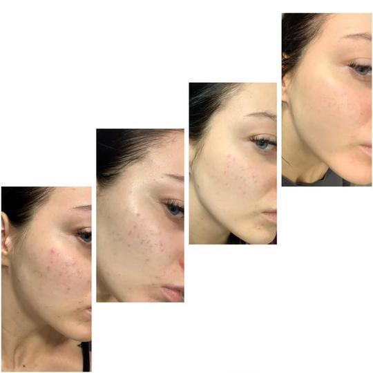 Anti-Acne Serum uses